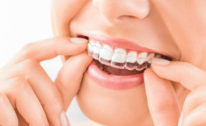 Girl smiling with invisalign clear aligners